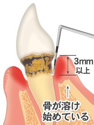 歯周炎 文字付